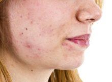 Gesicht mit Akne